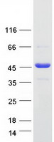 Coomassie blue staining of purified YJU2