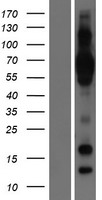 Western blot validation of overexpressio