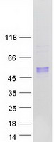 Coomassie blue staining of purified ARSB