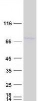 Coomassie blue staining of purified DCP1
