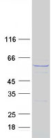 Coomassie blue staining of purified CCT8