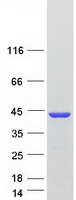 Coomassie blue staining of purified AKR1
