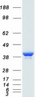 Coomassie blue staining of purified LDHA