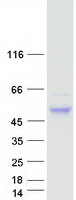 Coomassie blue staining of purified CNOT
