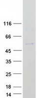 Coomassie blue staining of purified TBX1