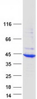 Coomassie blue staining of purified HYKK
