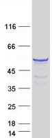 Coomassie blue staining of purified CPEB