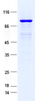 Coomassie blue staining of purified RNAS