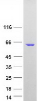 Coomassie blue staining of purified IRF5