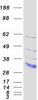 Coomassie blue staining of purified LDLR