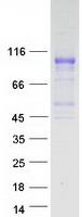 Coomassie blue staining of purified FGFR