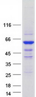 Coomassie blue staining of purified ICA1