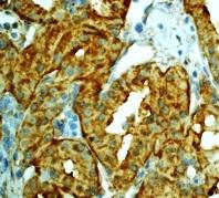 Immunohistochemistry (Formalin/PFA-fixed