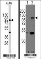 Western blot analysis of anti-CDH3 Antib