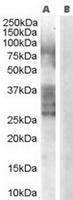 TA302404 (0.3ug/ml) staining of Human Pr