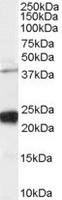 TA302499 staining (0.03ug/ml) of human H