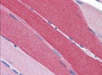 TA302564 (5ug/ml) staining of paraffin e