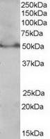 TA302579 (0.3ug/ml) staining of Jurkat l