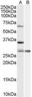 TA302582 (1ug/ml) staining of HeLa cell