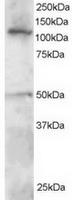 TA302613 staining (0.5ug/ml) of Jurkat l