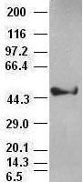 CK18 antibody ( 1E1) at 1:1000 dilution