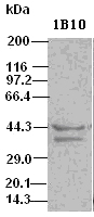 DFF45 antibody (1B10) at 1:500 dilution