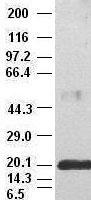 IL-6 antibody (2C9) at 1:50000 + recombi