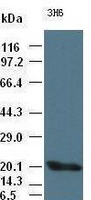 IL-6 antibody (3H6) at 1:2000 + recombin