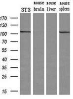 Western blot analysis of extracts (10ug)