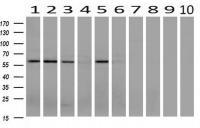 Western blot analysis of extracts (10ug)