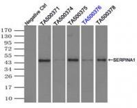 Immunoprecipitation (IP) of SERPINA1 by