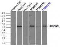Immunoprecipitation (IP) of SERPINA1 by