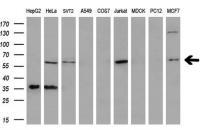 Western blot analysis of extracts (35ug)