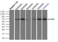 Immunoprecipitation (IP) of PLK1 by usin