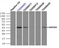 Immunoprecipitation (IP) of MAP2K4 by us