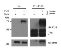 Purified FUS (TP301808) and SMN proteins